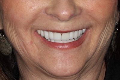 female patient of Marcus Black DDS and their smile gallery